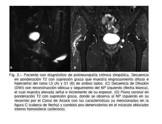 Neurografía por resonancia magnética para la identificación de la ...